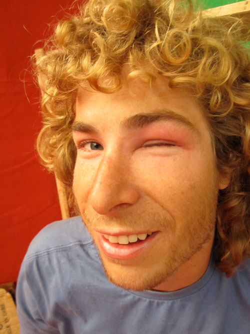 An antic... Ant Green, XCmag's resident acro pilot, suffers extreme eye reaction to a bee sting